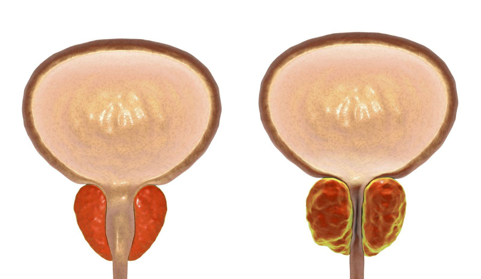 Hypertrophie bénigne de prostate